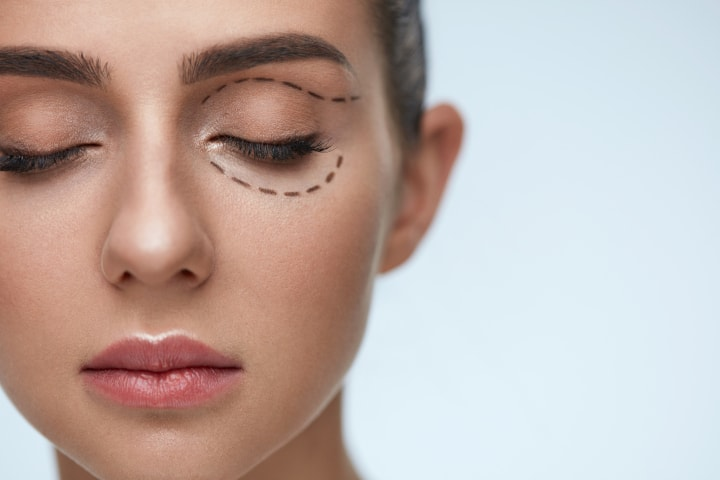 Is surgery necessary to get rid of dark circles?