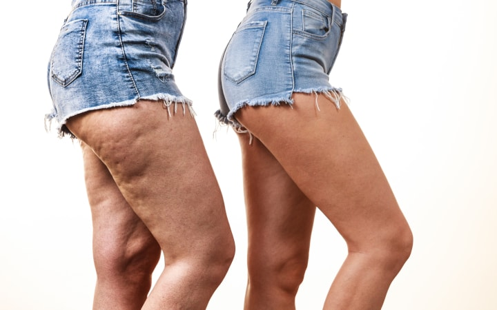 Can Aminophylline Reduce Cellulite