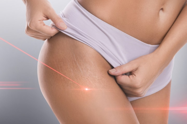 How to Eliminate Stretch Marks