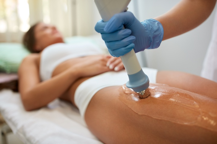 Best Treatment for Cellulite