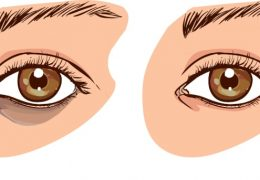 What Causes Dark Circles Under Your Eyes?