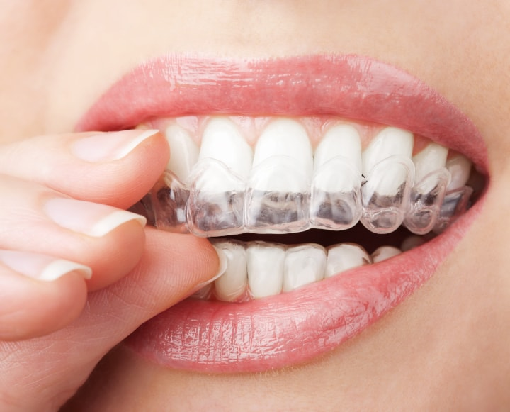 Which Teeth Whitening Products Work Best Letstalkbeauty