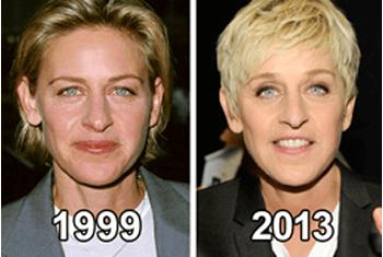 Ellen skin