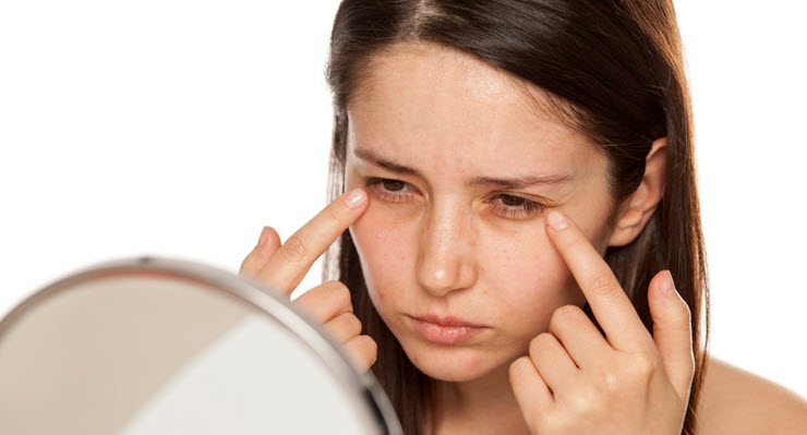 What Are Dark Circles and Why Do You Get Them?